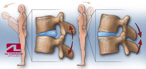 درمان بدون جراحی دیسک