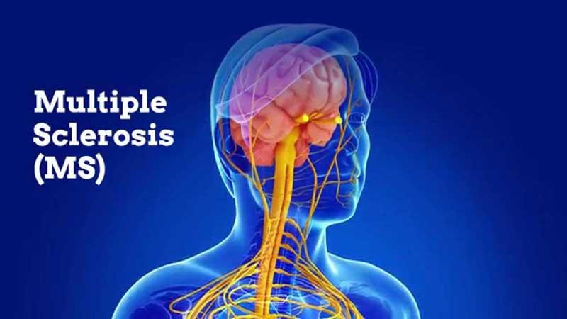 بیماری ام اس (ms)