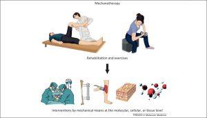 مکانوتراپی (Mechanotherapy)
