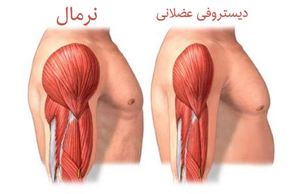 تحلیل عضلانی